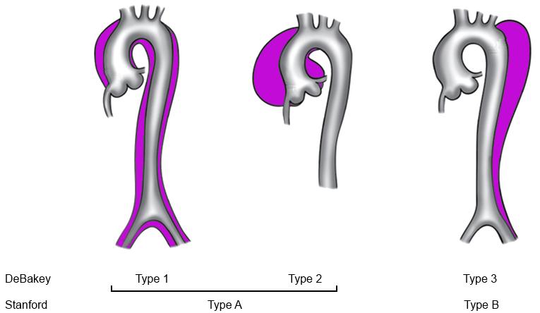 Trombose van de aorta