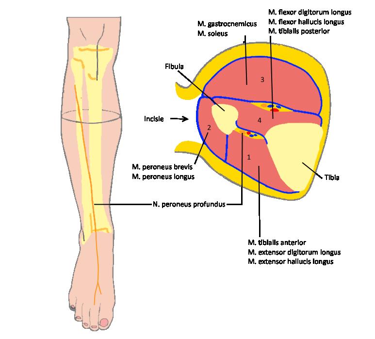 Fasciotomie Onderbeen