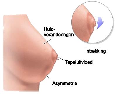 melkklier ontsteking