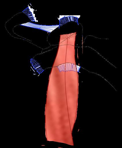 operatie ac gewricht schouder