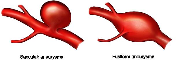 sacculair aneurysma